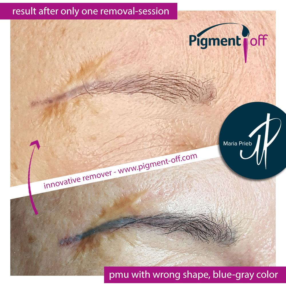 Home ⋆ Pigment-Off Tattoo Remover Germany