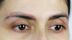 Removal of microblading ⋆ Pigment-Off Tattoo Remover Germany