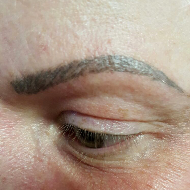 Removal Of Microblading Pigment Off Tattoo Remover Germany